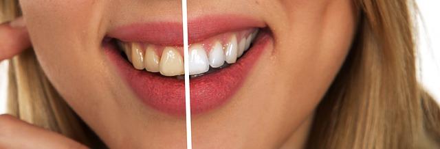 تبييض الاسنان بالمنزل بسهوله