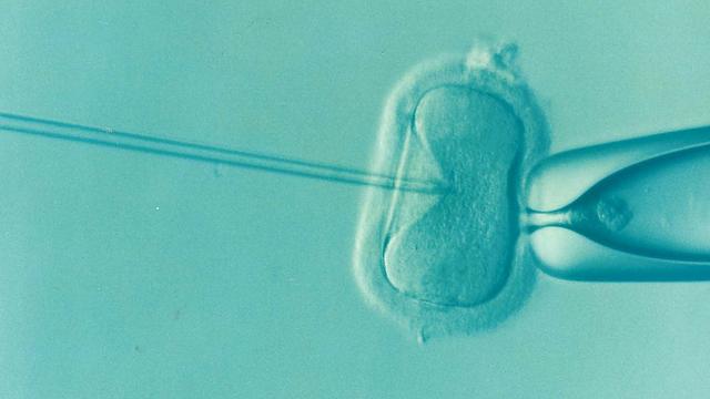 الحقن المجهري الامل لعلاج العقم , كيف يتم ؟